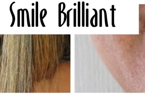 Brighten the New Year with a Whiter Smile